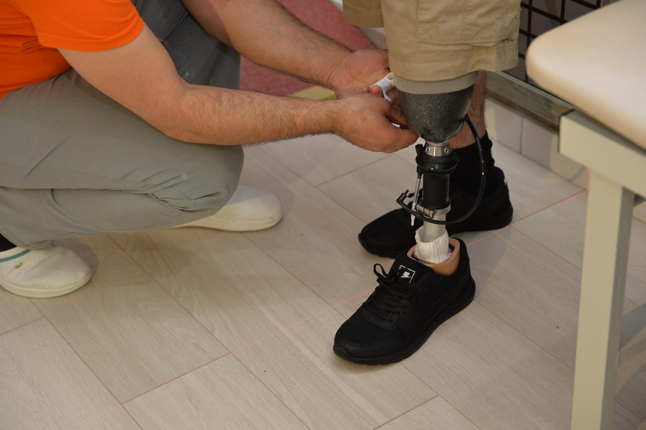 10 qaziyə yüksək texnologiyalı protez təqdim olunub