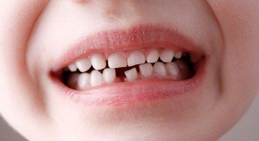 Azyaşlılarda süd dişləri bir-birindən niyə aralanır? -Həkim-stomatoloq