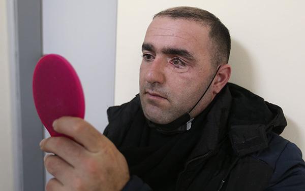 İsraildən gələn həkimlər qazimizə protez göz köçürdü
