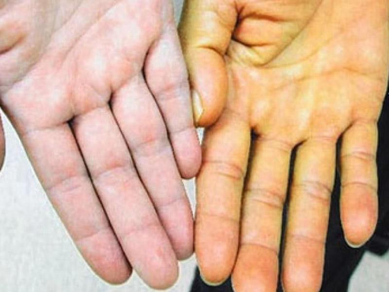 Qanda bilirubinin artması nəticəsində əmələ gələn - Sarılıq xəstəliyi