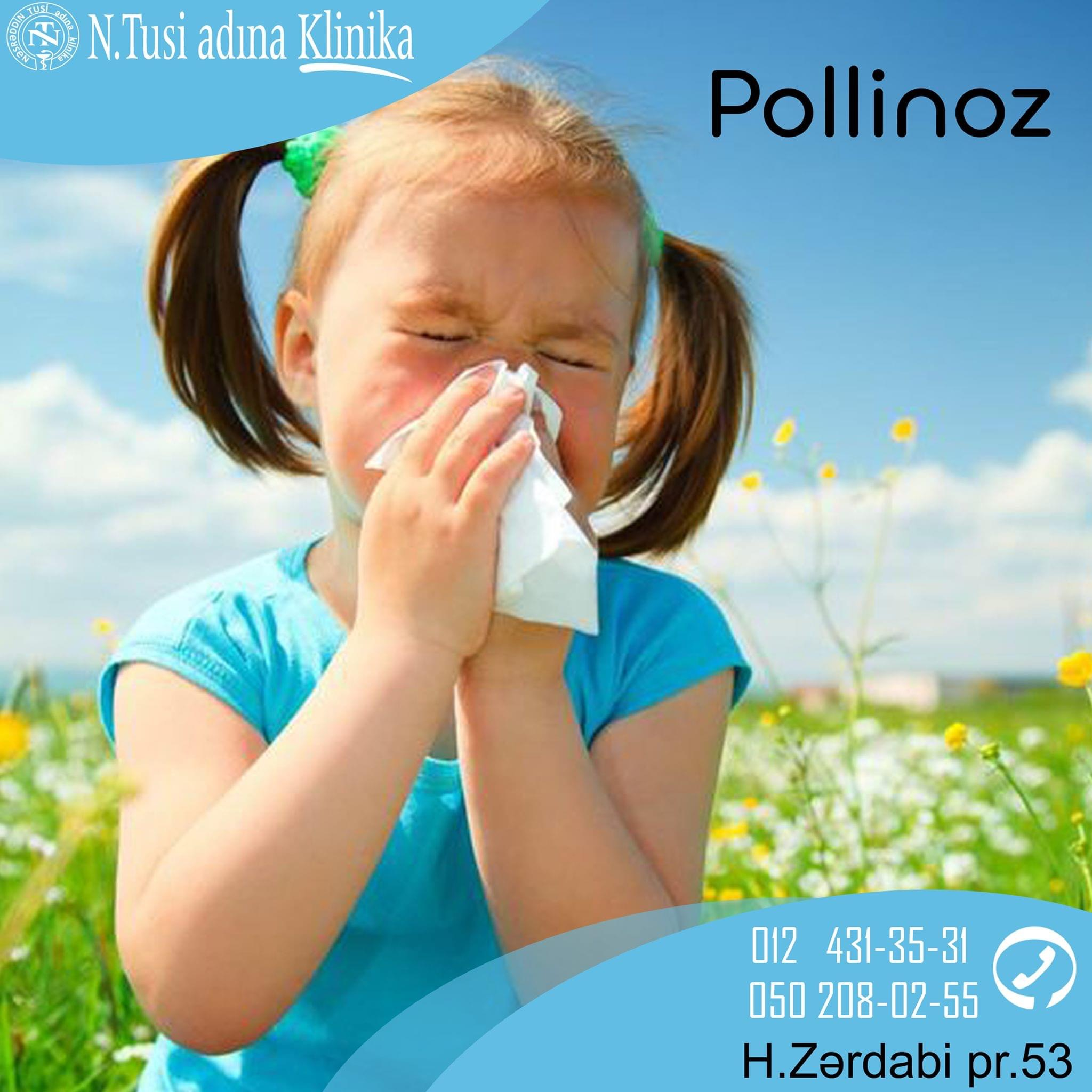 Pollinoz: əlamətləri və müalicəsi