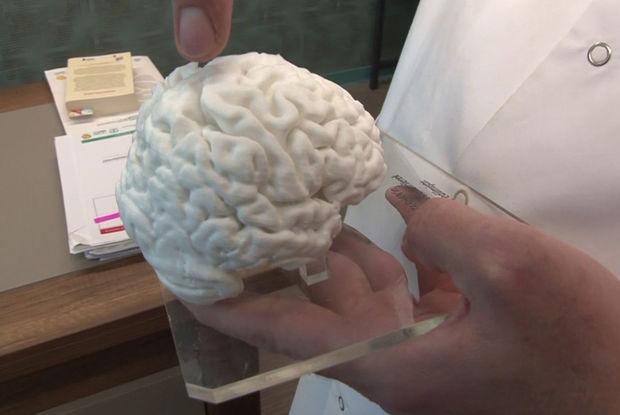 Türkiyədə bir ilk: 3D printerlə insan beyninin nüsxəsi hazırlandı