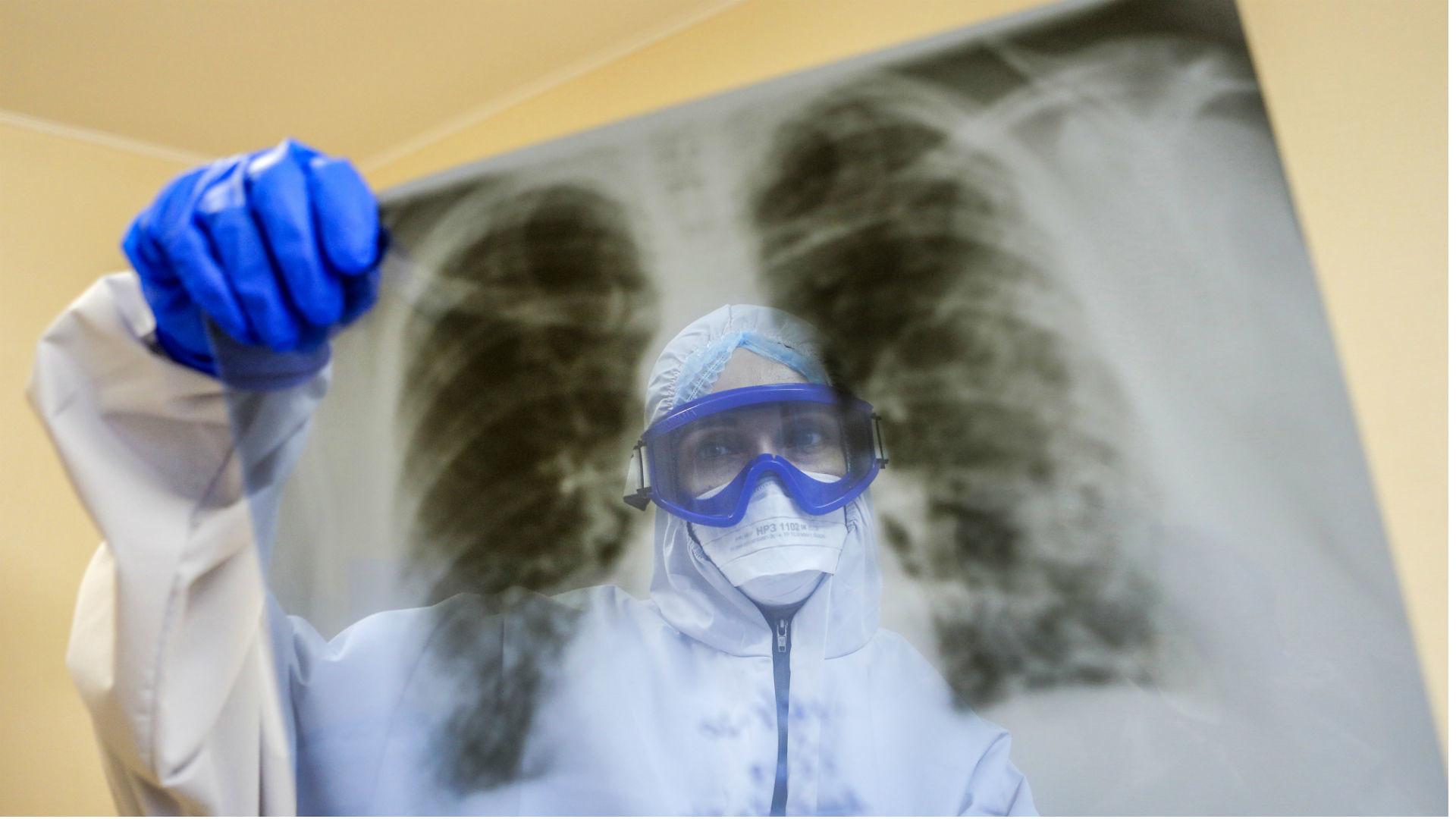 Regionlarda ödənişsiz döş qəfəsinin rentgen müayinələri təşkil edilib