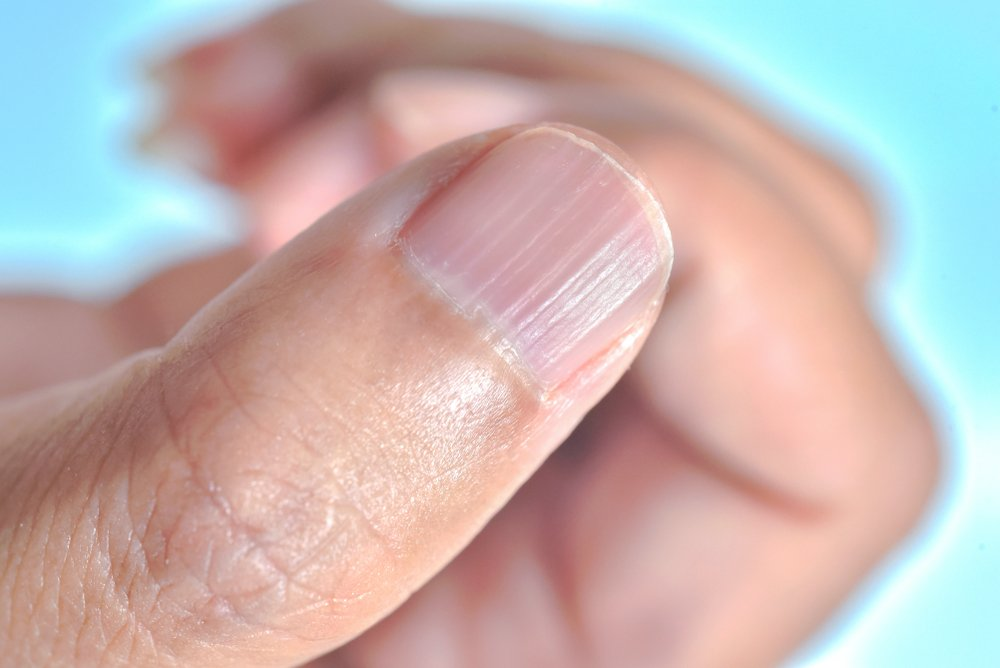 Həkim-fitoterapevtdən kalsium azlığı üçün effektivÇAY RESEPTİ