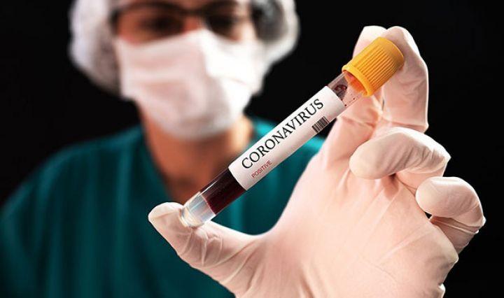 Daha iki universitetdə tələbələr koronavirusa yoluxub