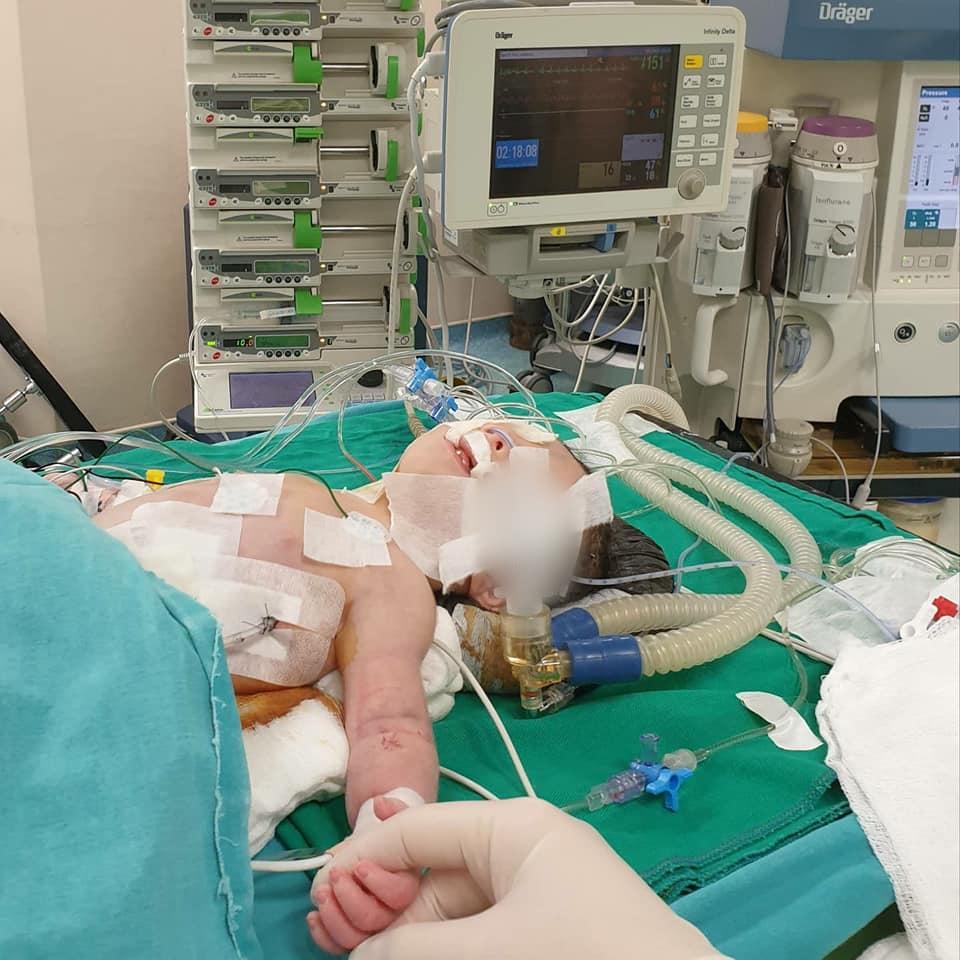 Həyatla ölüm arasında mübarizə aparan körpəyə PDA-nın ləğvi əməliyyatı uğurla həyata keçirilib - Mərkəzi Klinika
