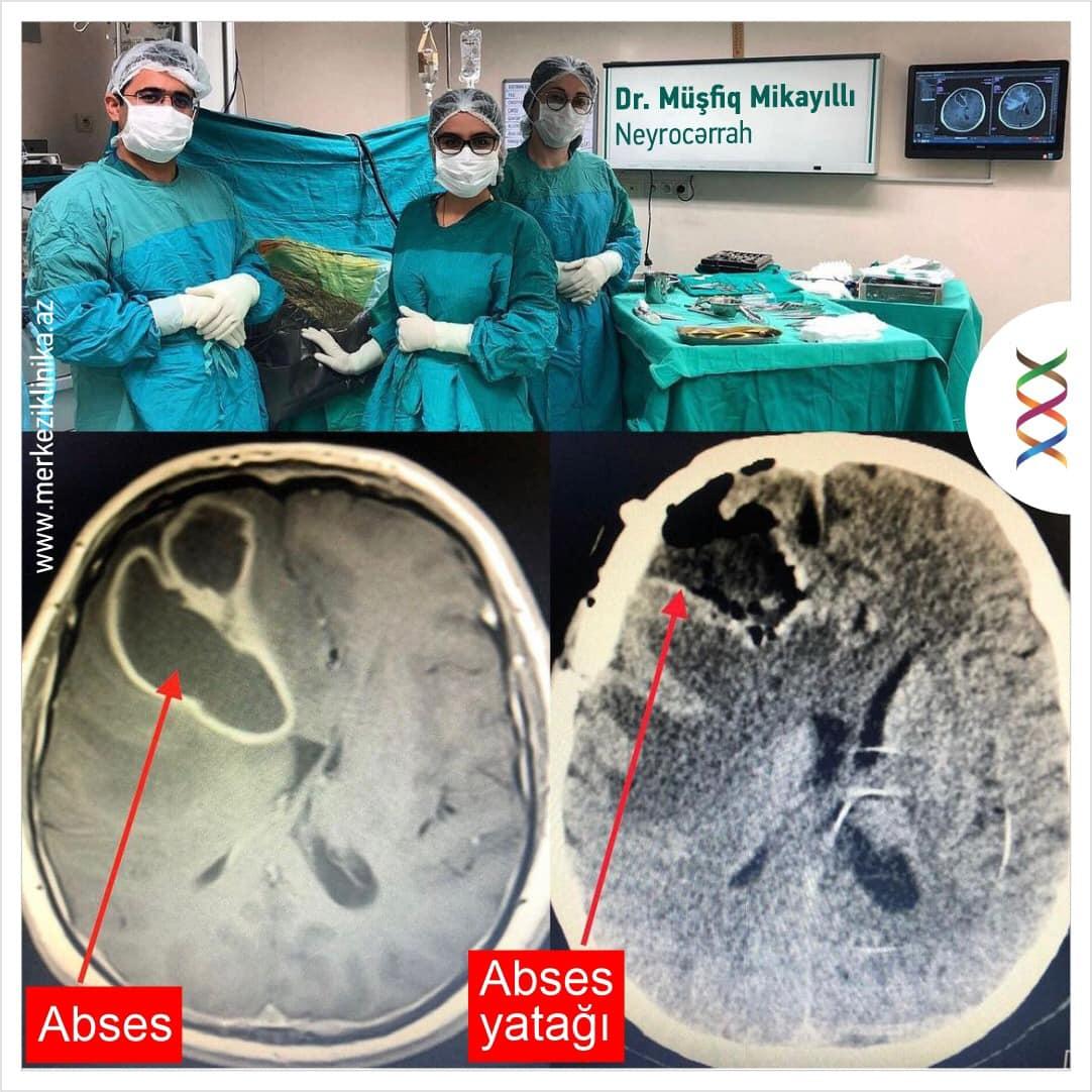 Sağ alın payında yerləşən böyük ölçülü və dərin uzantısıolan abses kapsulu ilə birlikdə xaric edilib - Mərkəzi Klinika