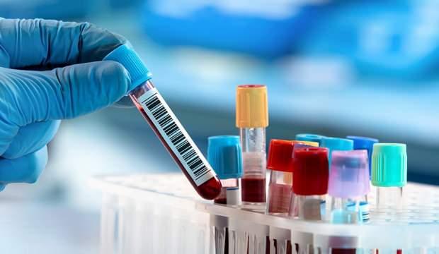 Son sutkadakoronavirusa yoluxma ilə bağlı STATİSTİKA