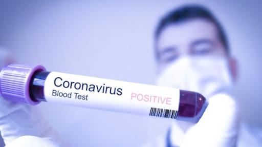 Daha 2 300 nəfər koronavirusa yoluxub